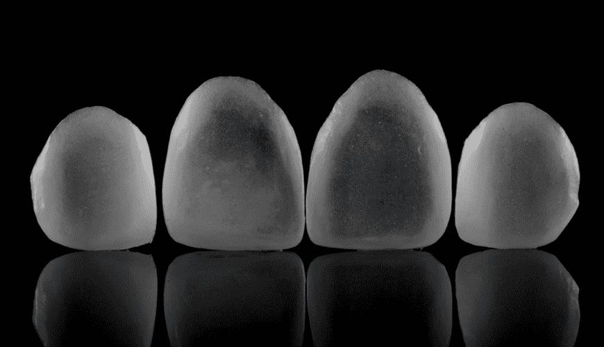 Atualização Clínica em lentes de contato e facetas cerâmicas   Única ... d69a966bb1