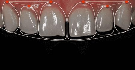 Planejamento digital na odontologia estética