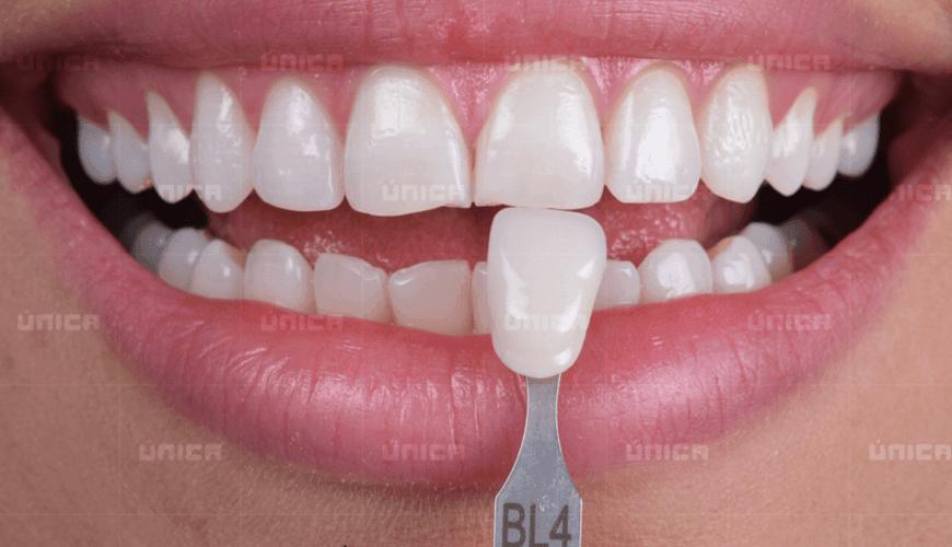 Imersao Em Clareamento Dentario Unica Cursos Avancados Em