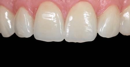 Cursos   Única Cursos Avançados em Odontologia e679dcb20a