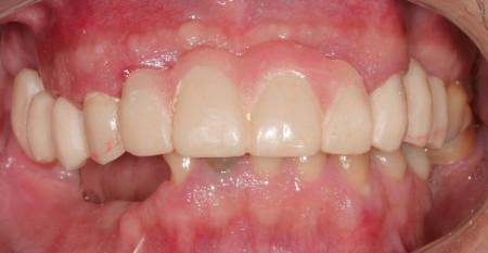 Capacitação em implantodontia, cirurgias guiadas e cirurgias plásticas periimplantares e periodontais home