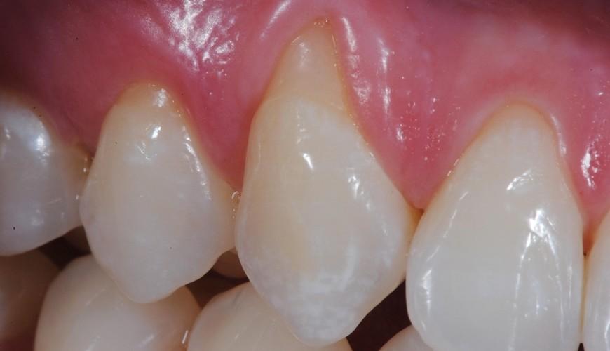 Imersao Controle da Hipersensibilidade Dentinária e Tratamento de Lesões Cervicais Não Cariosas