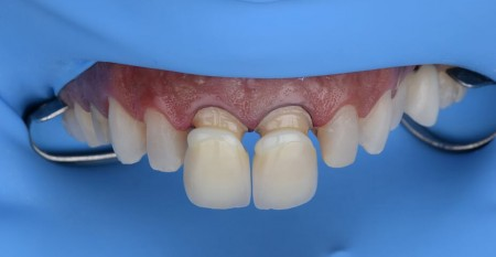 Especialização com dupla certificação em Dentística e Prótese
